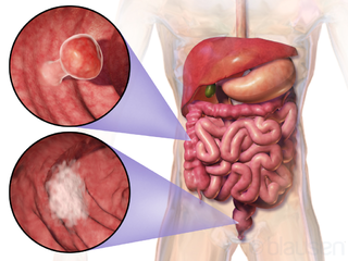 Illustration Wikipedia du cancer colorectal
